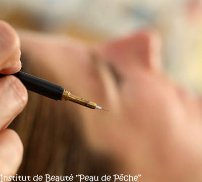 Institut de Beauté Peau de Pêche -  Epilation Blend ThermoLyse